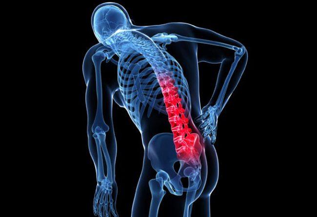 Densytometria. Na czym polega badanie gęstości kości?